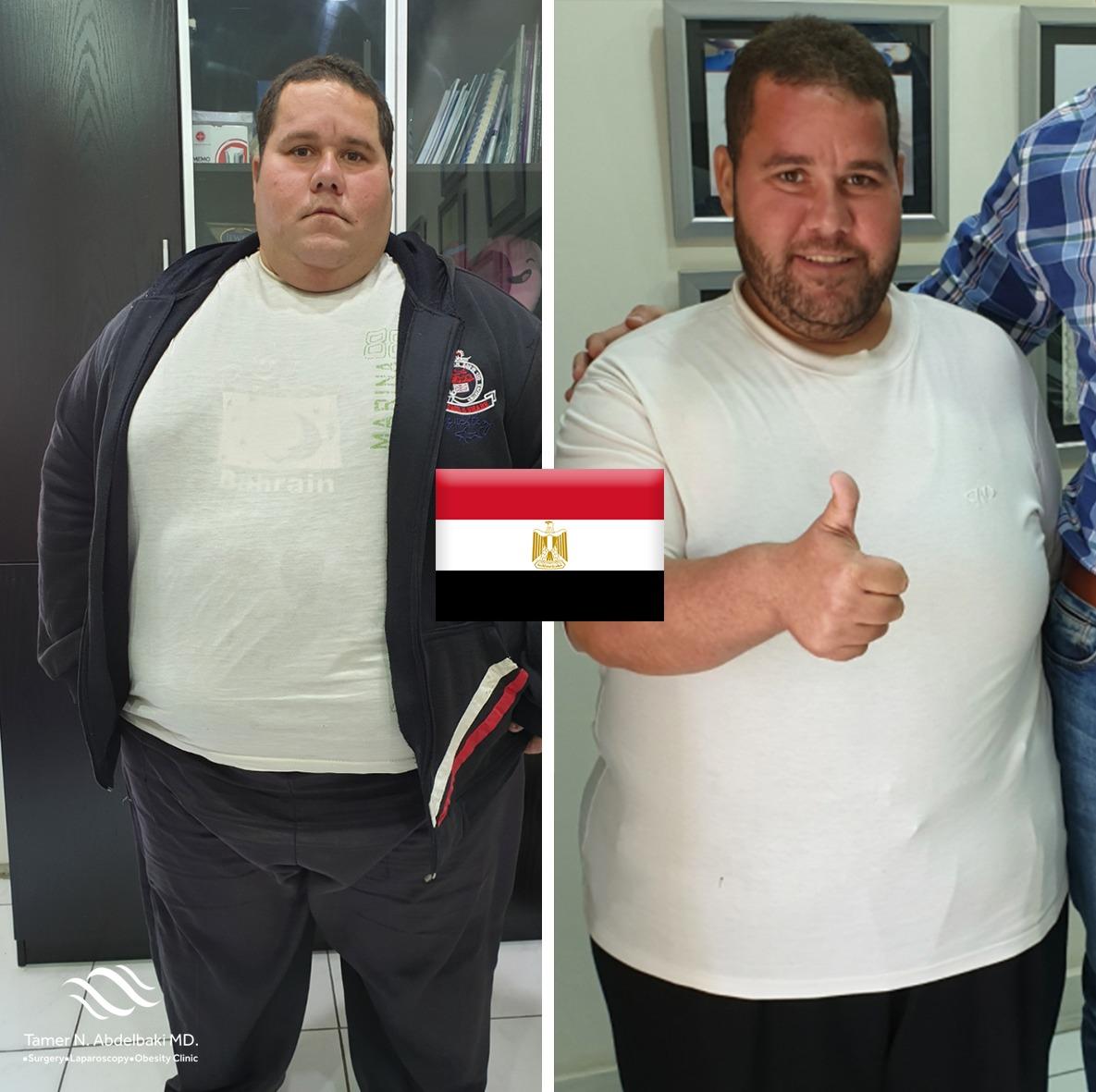 Hussein Abdelrazek